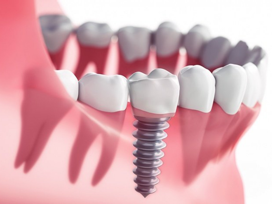 What to Do If Your Dental Implants Fail